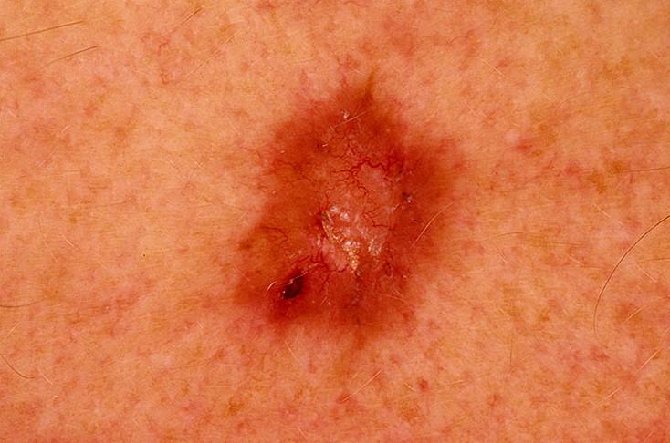 рак кожи базалиома
