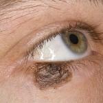 Что такое меланома
