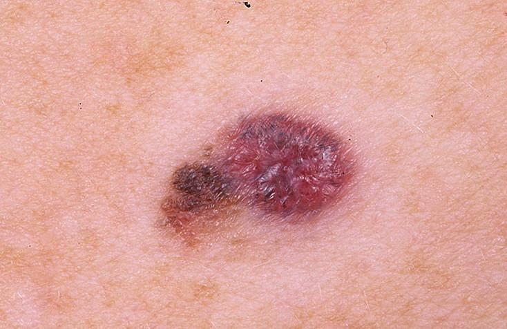 меланома злокачественная фото