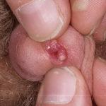 Папилломы на половых губах фото