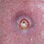 Как определить рак кожи