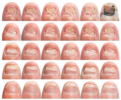 Лечение грибка ногтей на ногах фото