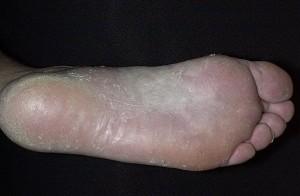 Избавиться грибков ногах