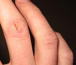 Трещина на пальцах