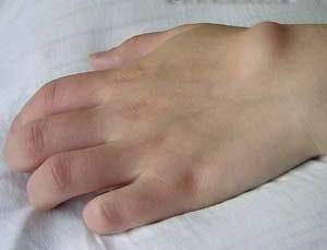 Жировик на руке