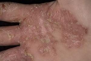 дерматит экзема на руках