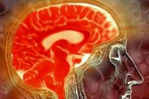 Наружная заместительная гидроцефалия головного мозга