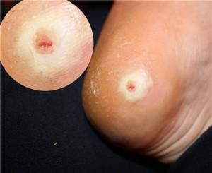 Сухой мозоль на ноге