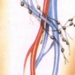 Воспаление паховых лимфоузлов
