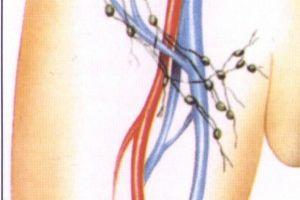 лимфоузлы паховые у женщин фото