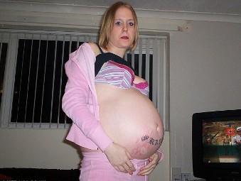 Увеличенный кишечник перепутали с будущим ребенком