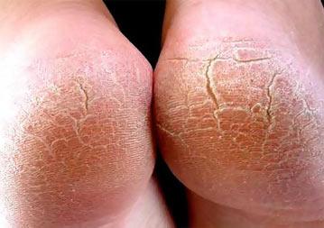 Трещины на ногах (пятках)