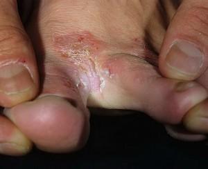 Трещины на между пальцами