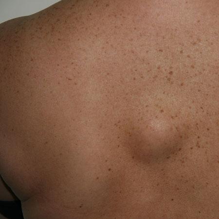 Жировик на спине или шее