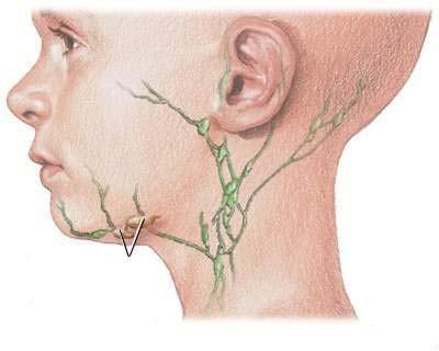 Воспаление шейных лимфоузлов