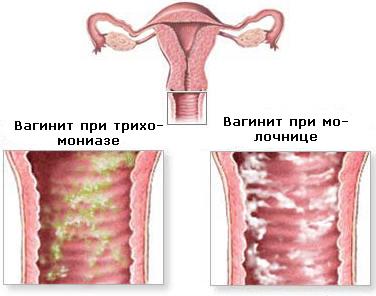 Кольпит (вагинит) у мужчин и женщин