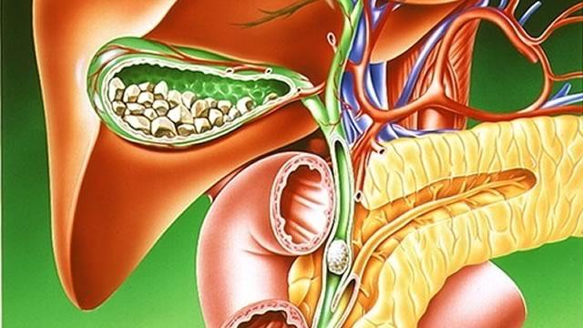 Желчнокаменная болезнь (холелитиаз)