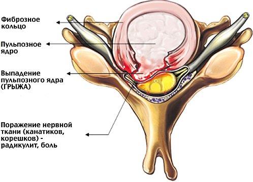 Грыжа шейного отдела позвоночника