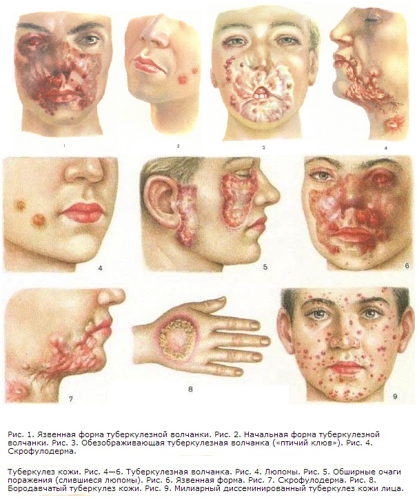 Туберкулез фото