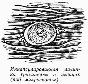 Трихинеллез
