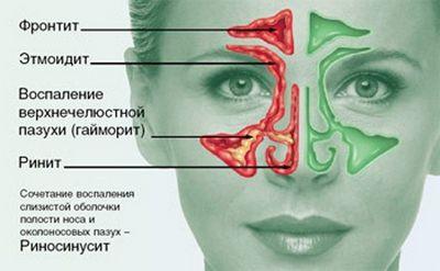 Острый синусит