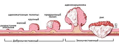 Перерождение клеток при раке прямой кишки