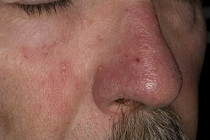 Пиелолитотомия фото