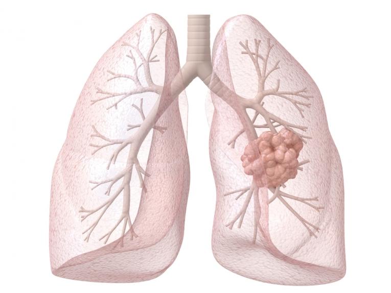 Диагностика и лечение рака легких