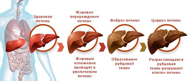 Причины и симптомы цирроза печени