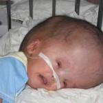 Гидроцефалия головного мозга у новорожденных