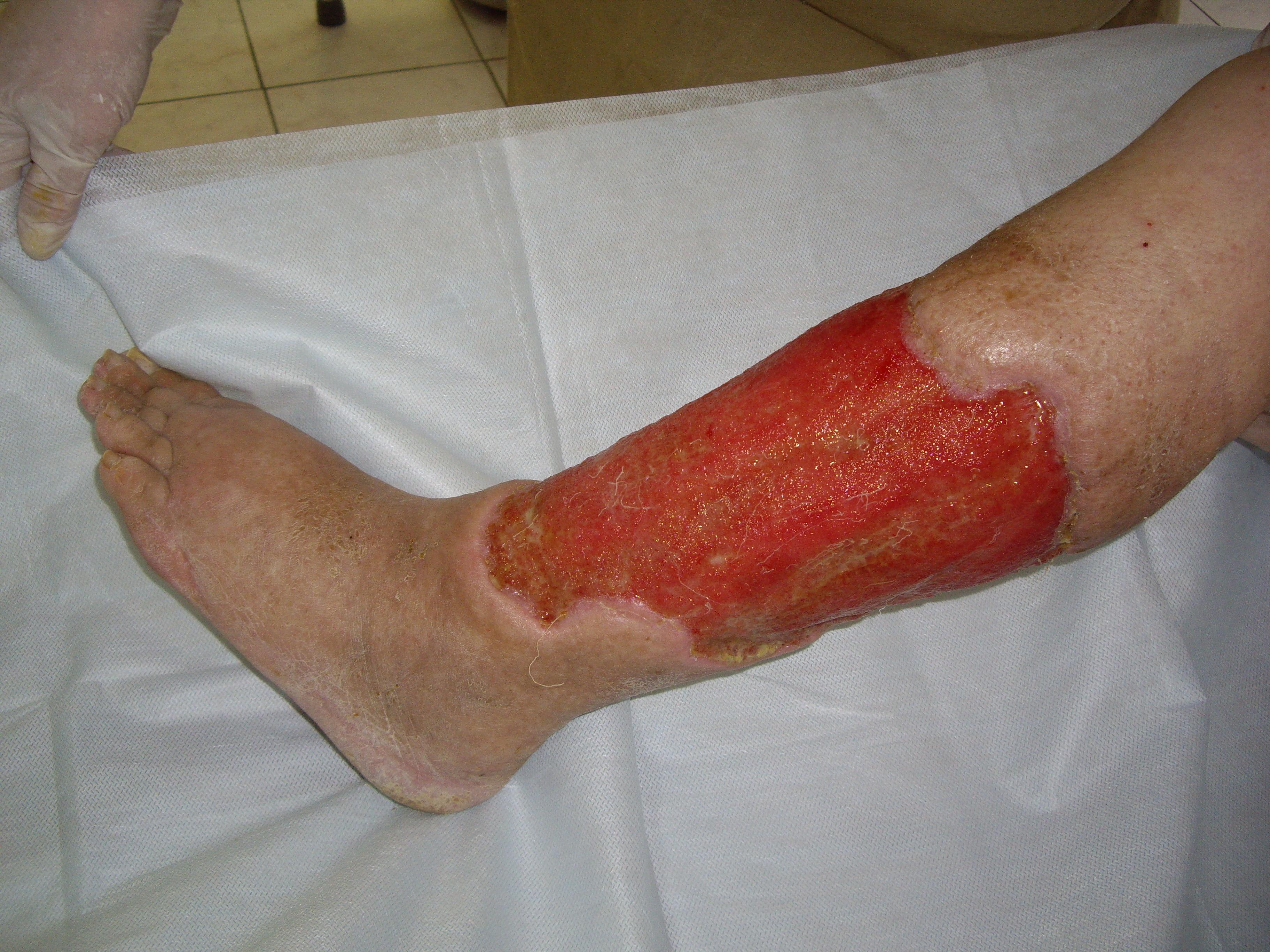 Рожа на ноге: симптомы, причины и лечение (+ фото)
