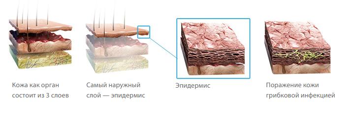 Поражение кожи грибком