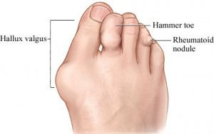 Артрит суставов пальцев ног