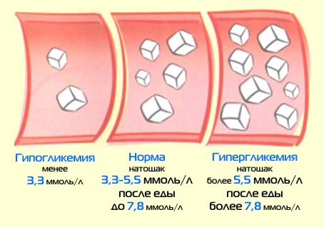 http://lechimsya-prosto.ru/wp-content/uploads/2013/12/310.jpg