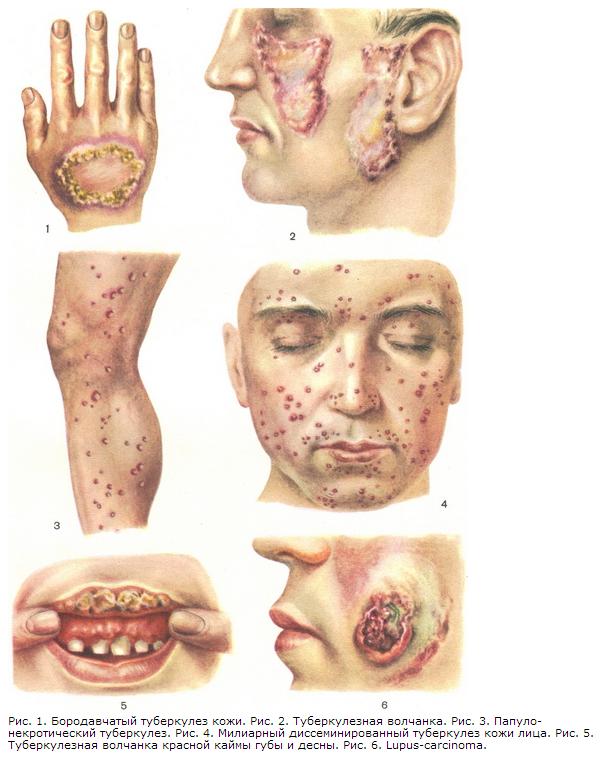 Бородавочный туберкулез