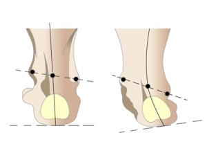 Развитие вальгусной деформации стопы