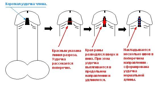 Короткая уздечка крайней плоти у мужчин